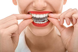 Braces Vs. Invisalign – Helping You Choose
