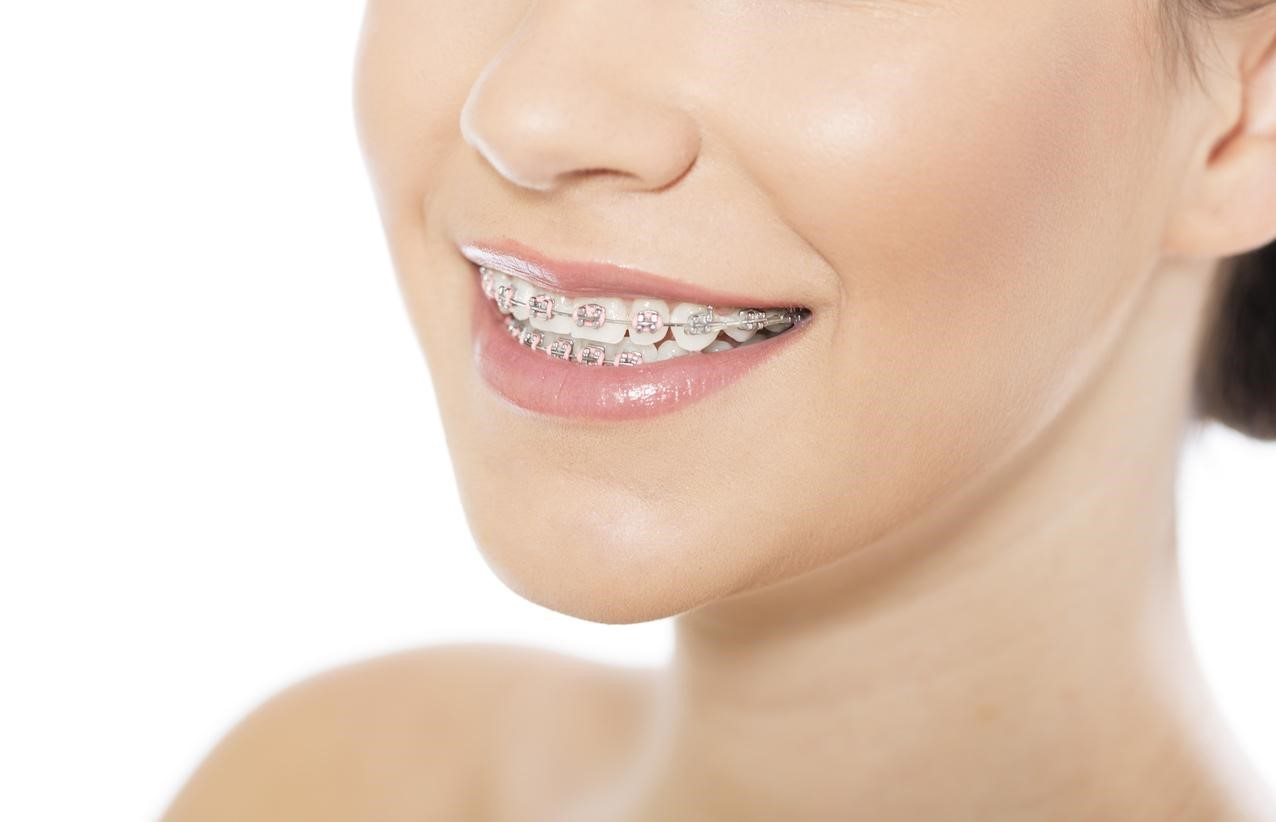 Do Direct to Consumer Braces Work?