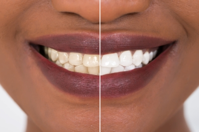 Teeth Whitening: Myths and Facts